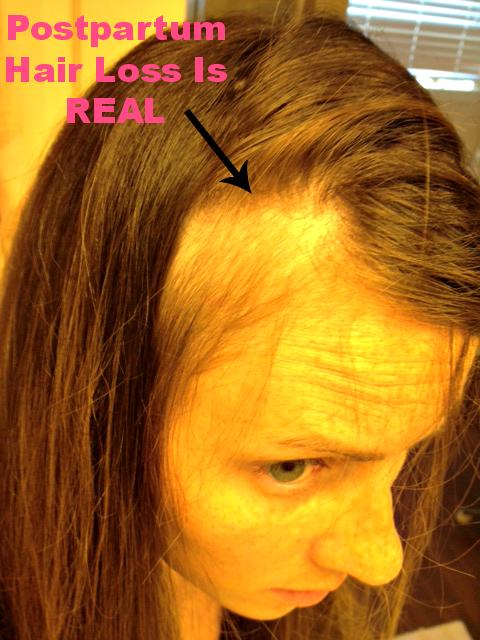 pp hair loss