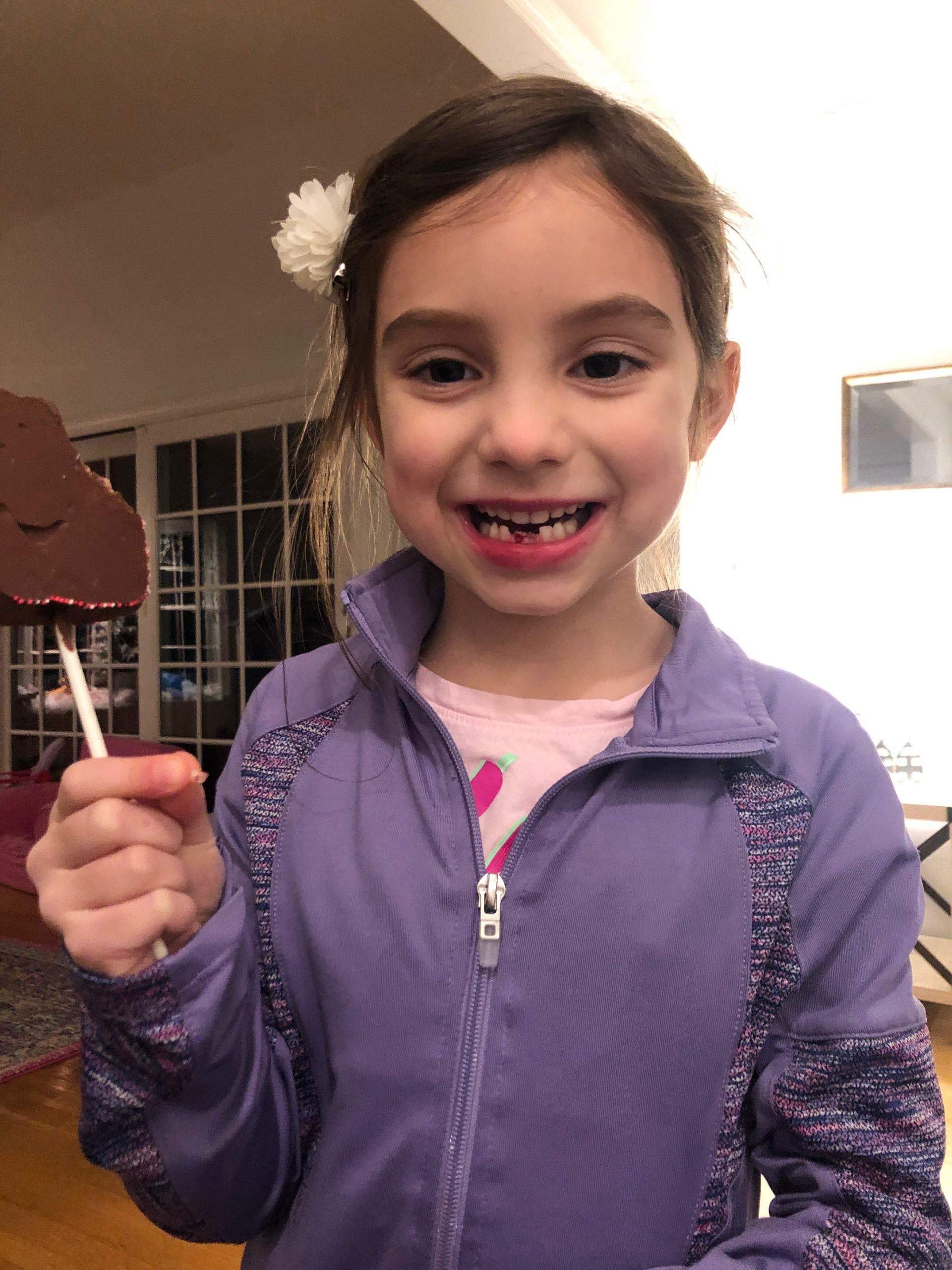Little girl showing off her second lost tooth