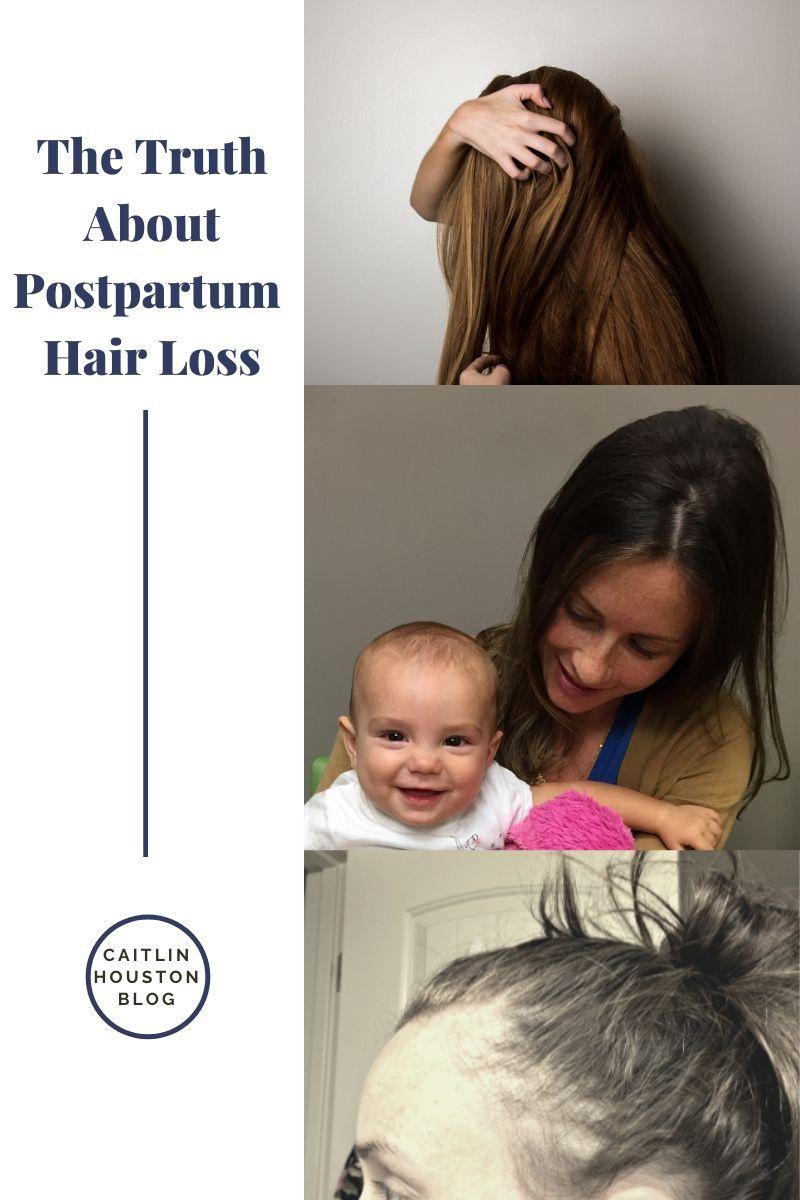postpartum hair loss photos