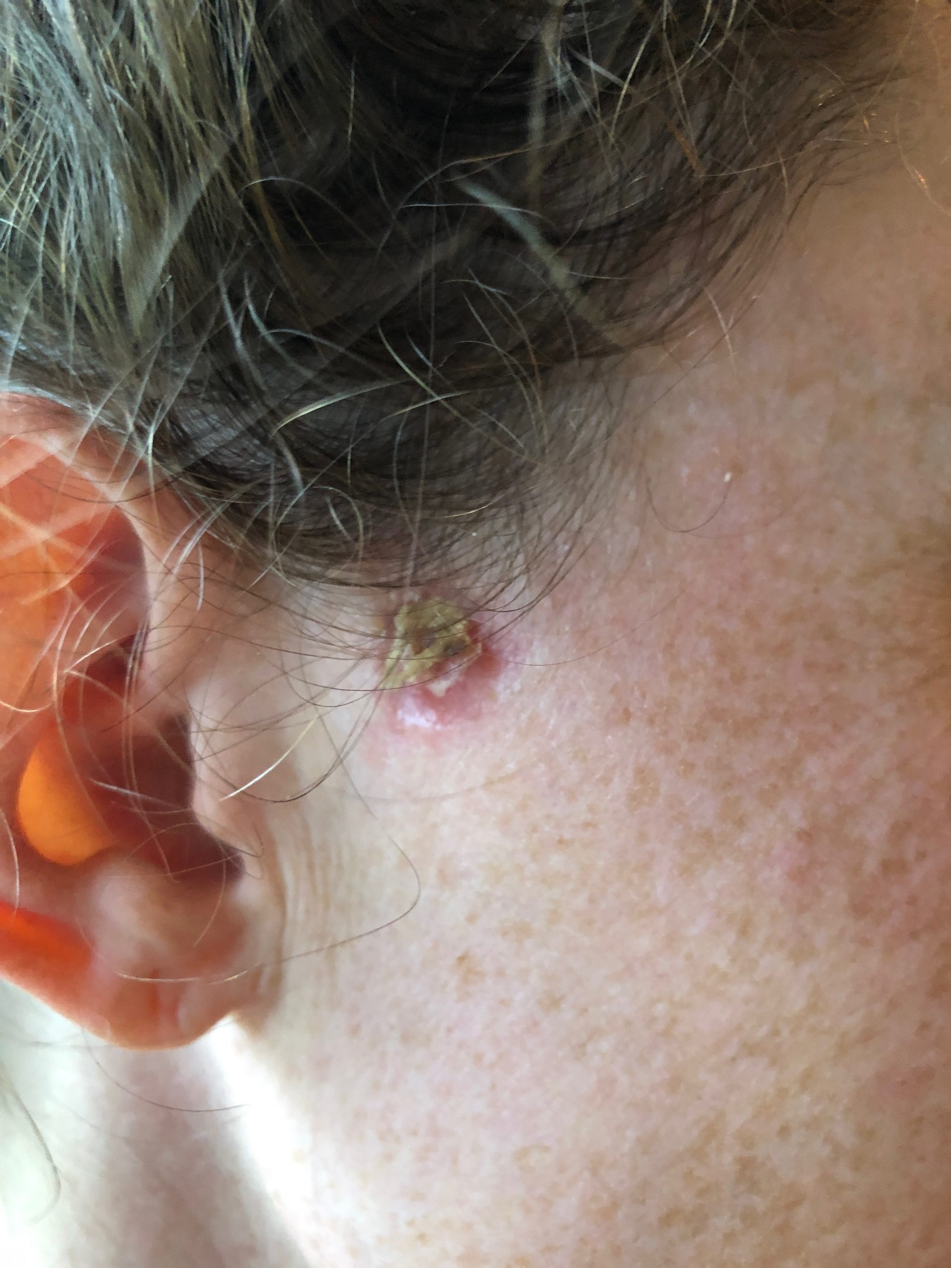 woman with skin cancer healing