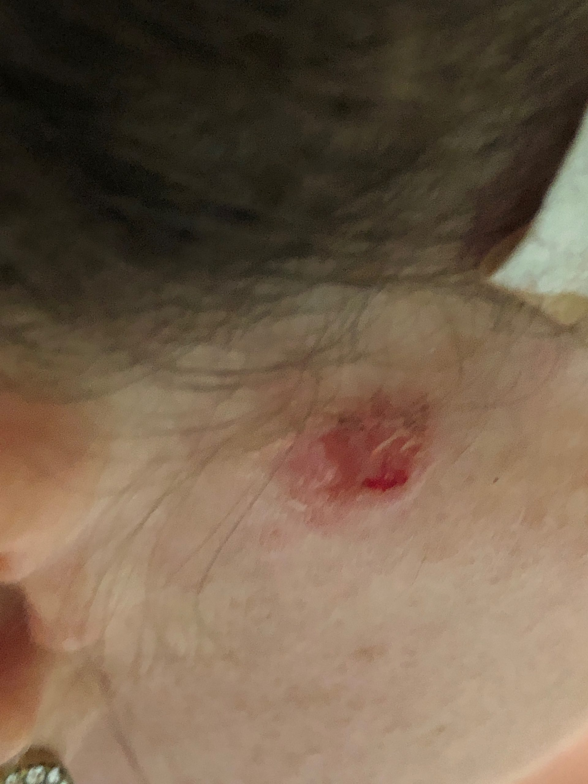 woman with basal cell carcinoma on face