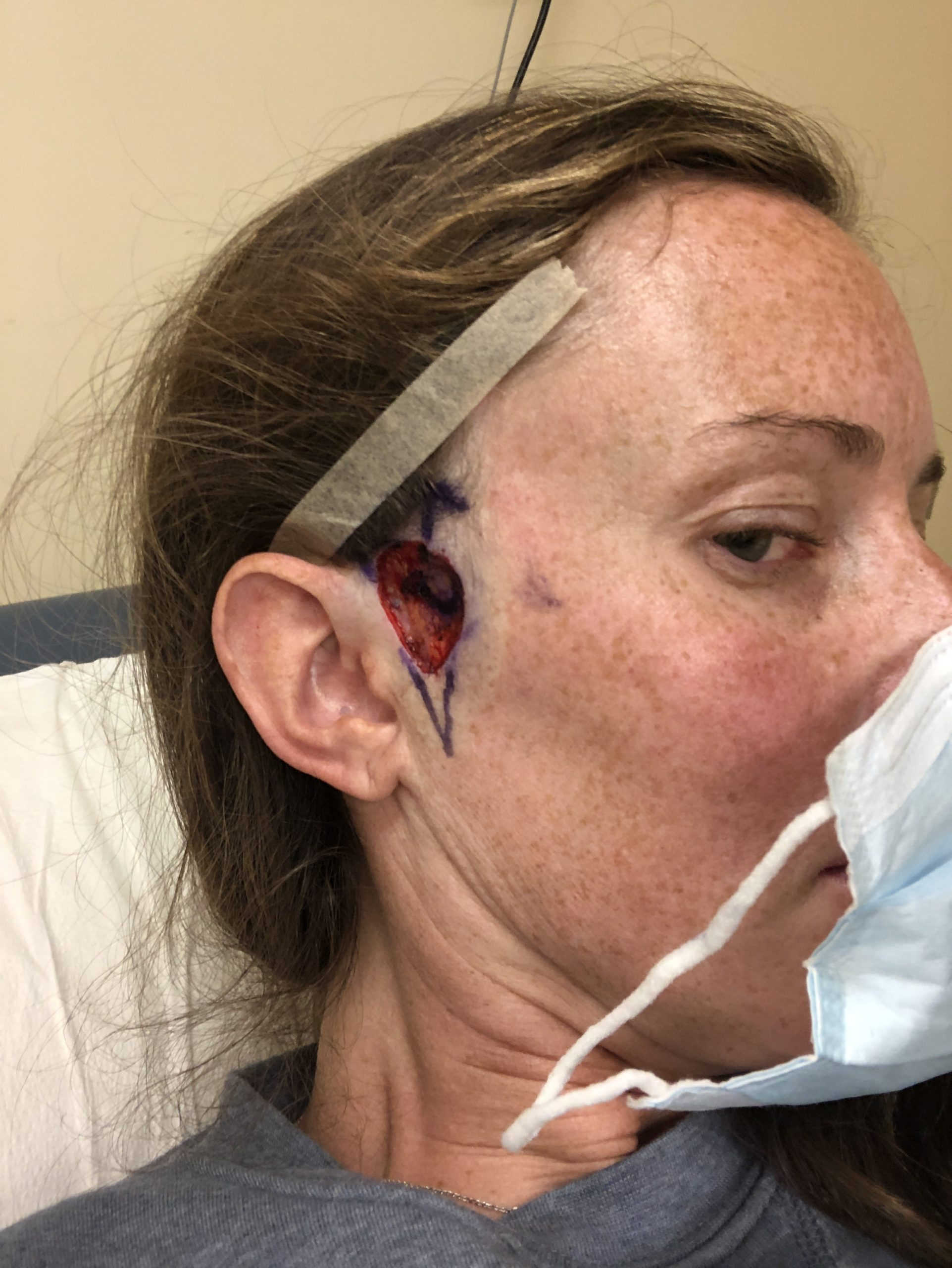 graphic mohs surgery open wound basal cell carcinoma