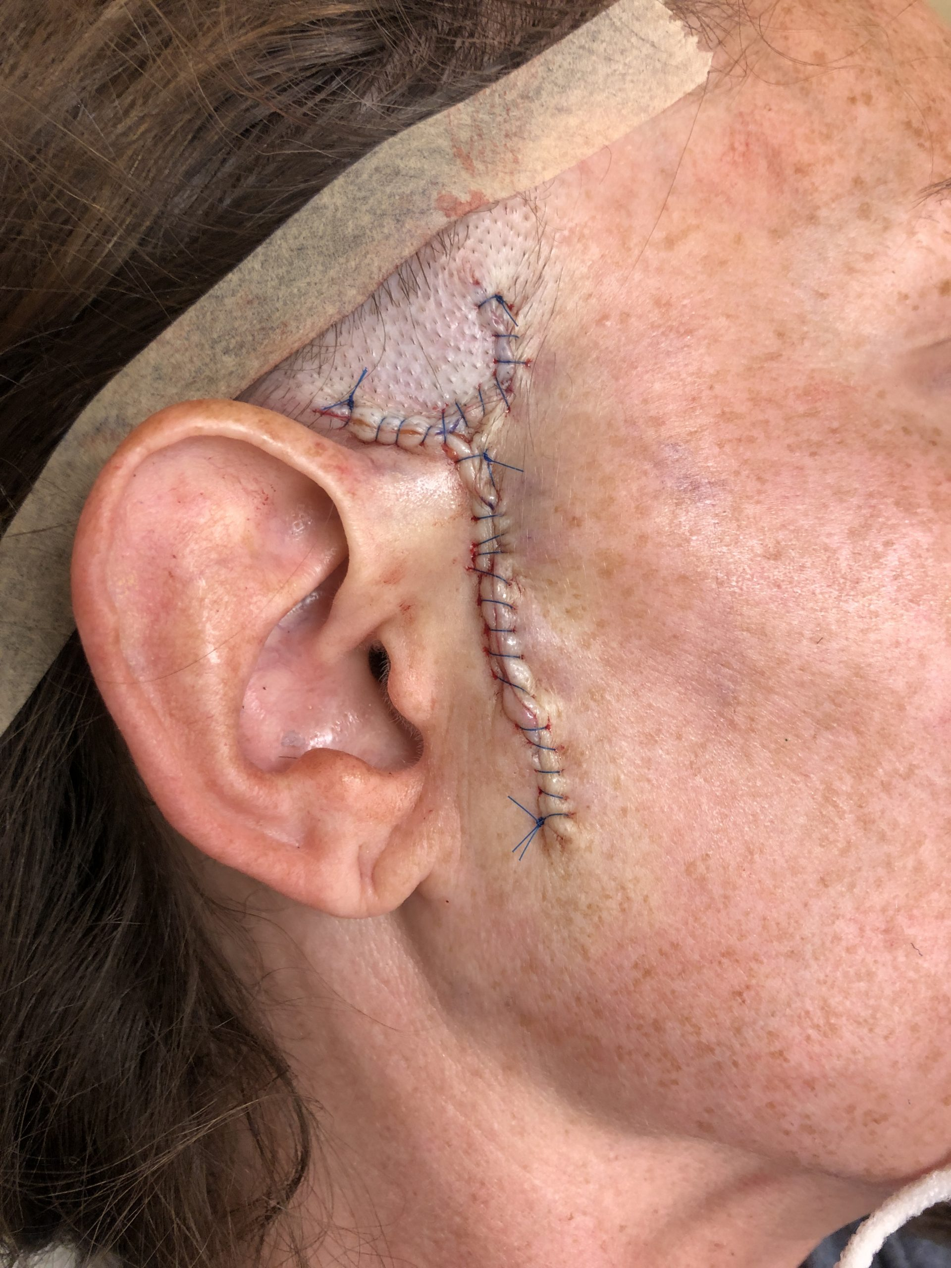 graphic scar after mohs surgery