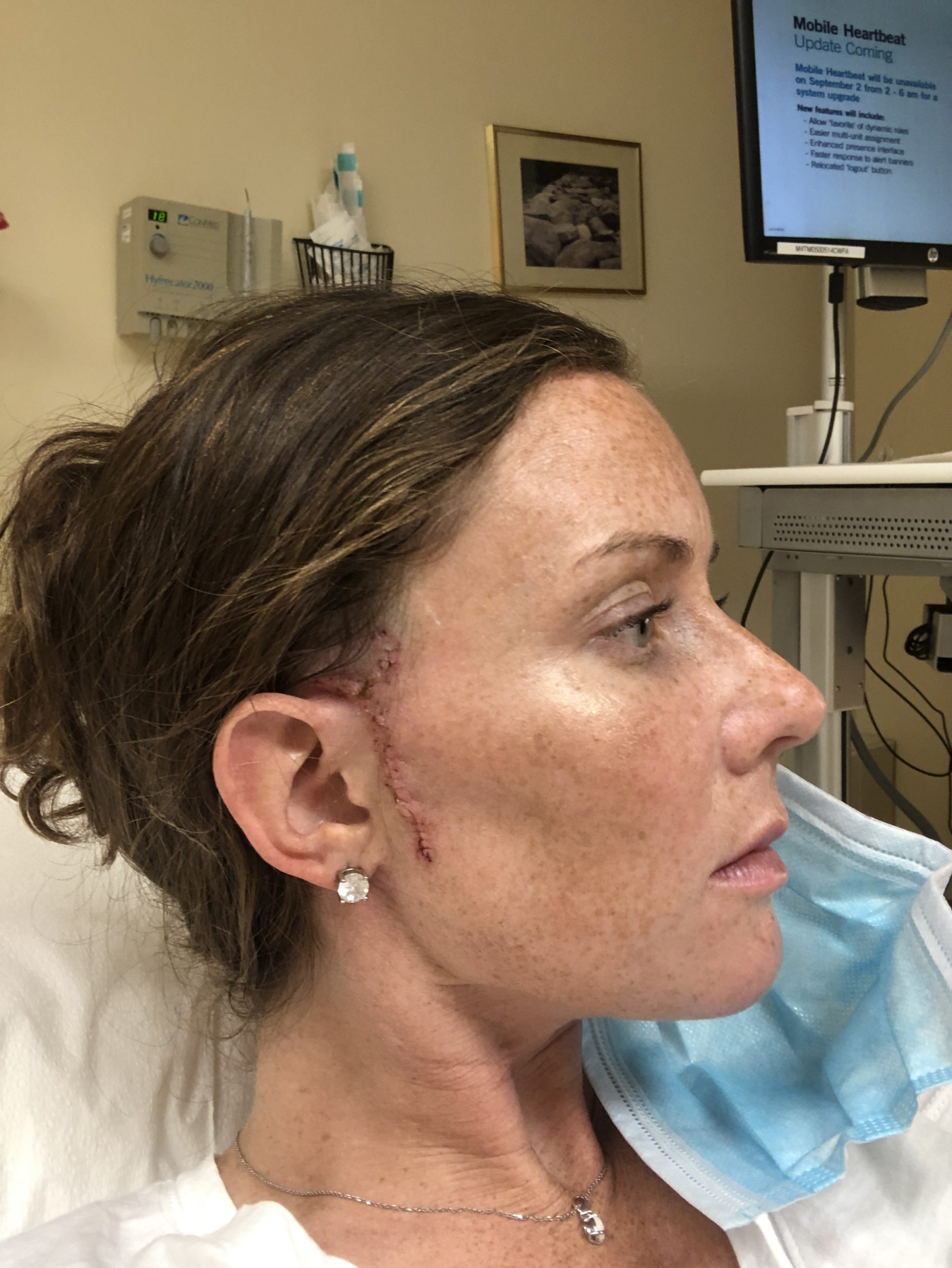 Woman post mohs surgery with stitches removed and scar